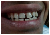Dental Implants training Center in India