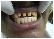 Dental implants Mumbai